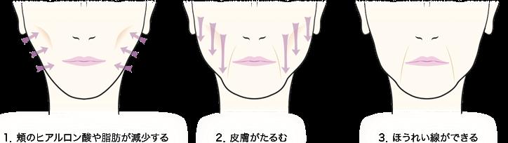 1.頬のヒアルロン酸や脂肪が減少する/2.皮膚がたるむ/3.ほうれい線ができる