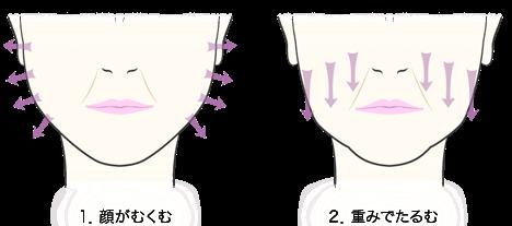 1.顔がむくむ/2.重みでたるむ