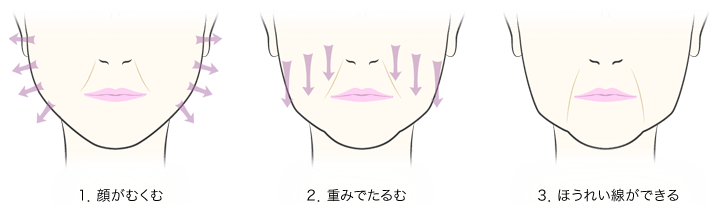 1.顔がむくむ/2.重みでたるむ/3.ほうれい線ができる